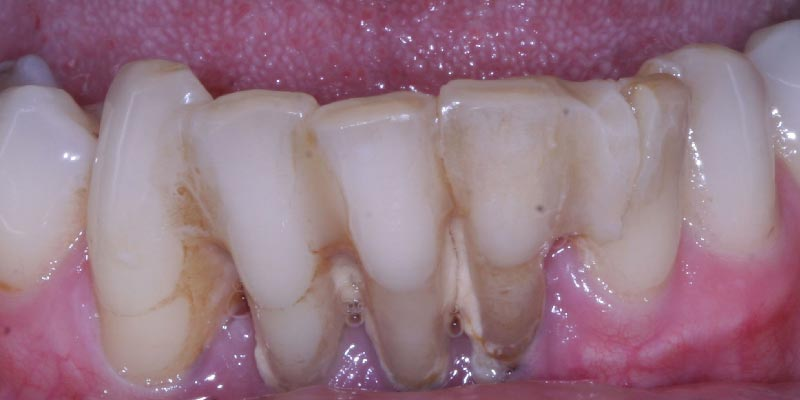 Smile Gallery - The Gallery Dental and Implant Centre